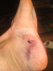 foot stic h